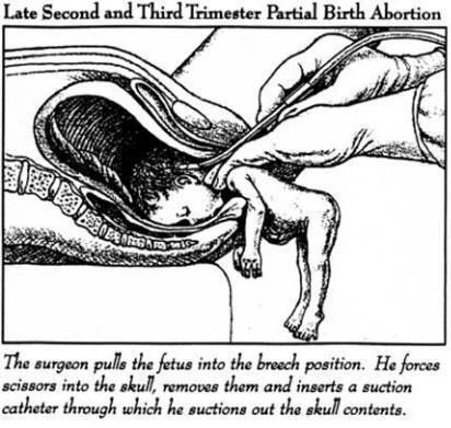utilitarian view on abortion There are many concerns with abortion, the biggest being is the fetus an actual person yet many of us will never know the answer to that question two views i will go deeper into is the view of immanuel kant and the view of a utilitarian immanuel kant is a firm believer that every person hasshow more.